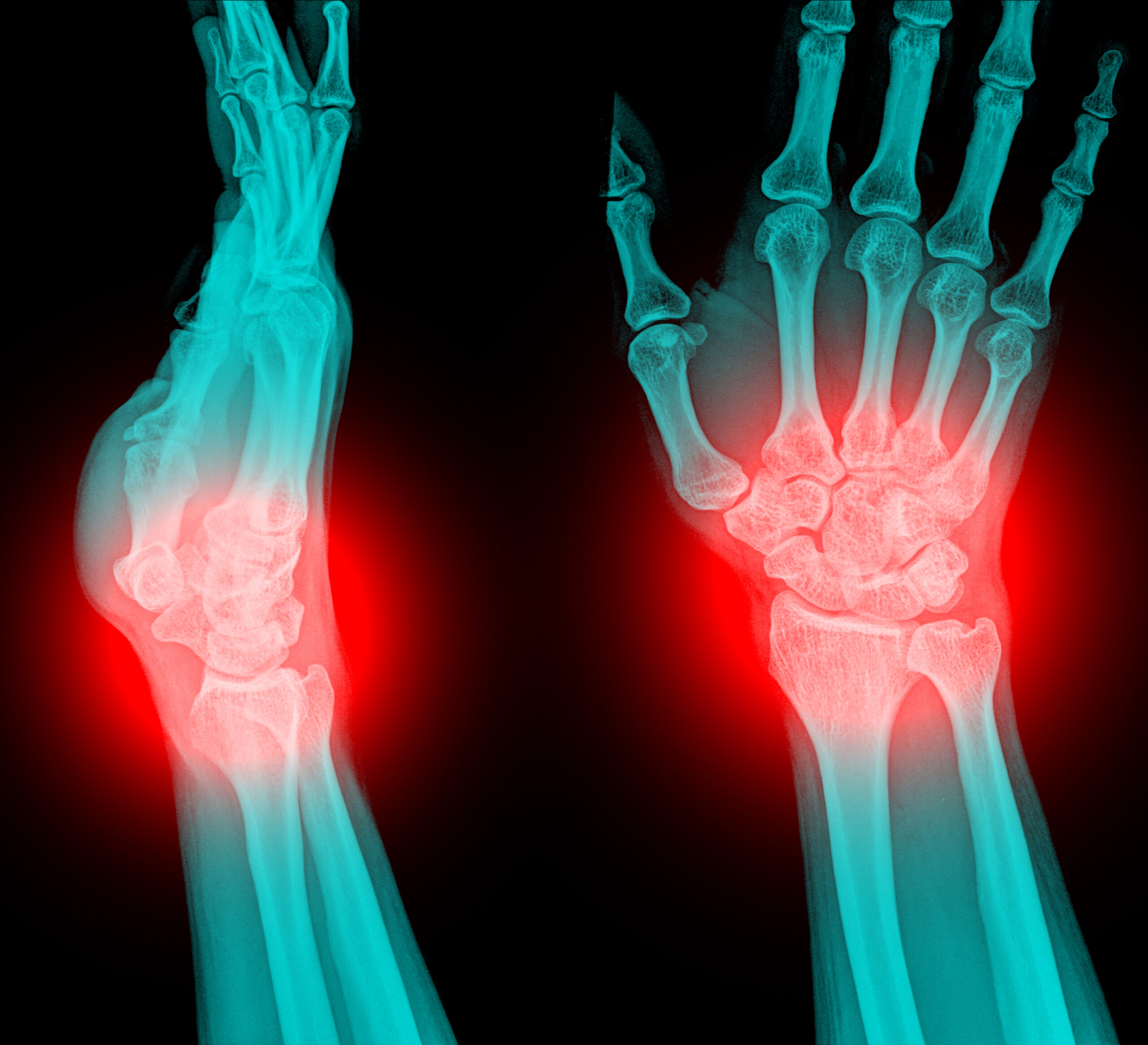 AP and lateral xray view of wrist